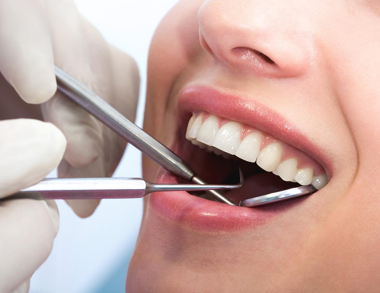 leczenie i wypełnianie zębów R Dent