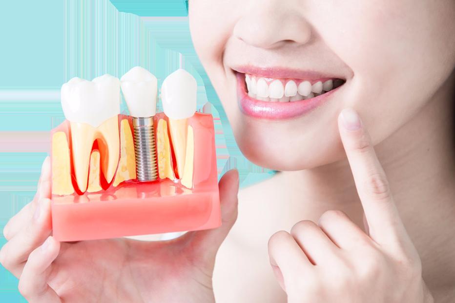 planowanie implantacji R Dent